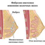 Менопауза после химиотерапии