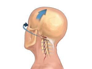 Напряжение в шее и спине слевой стороны, хруст и щелчки
