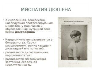 Миопатия Дюшена