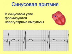 Диагноз синусовая аритмия (107-75)