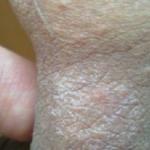 Воспаление подмышечного лимфоузла у ребенка
