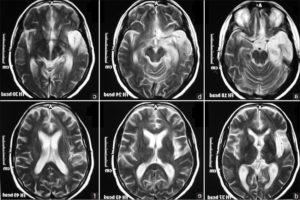 Дисциркуляторная энцефалопатия на МРТ головного мозга