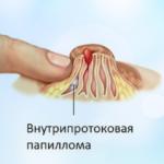 Нарушение менструации от гормональной мази