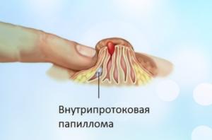 Внутрипротоковая папиллома. Как вылечить?