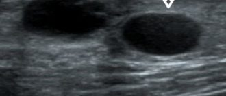 Узи признаки кист молочных желез