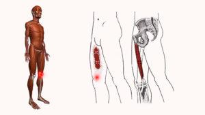 Дискомфорт в левой ноге от колена до паха