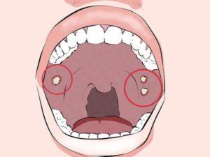 Внутри опухло горло