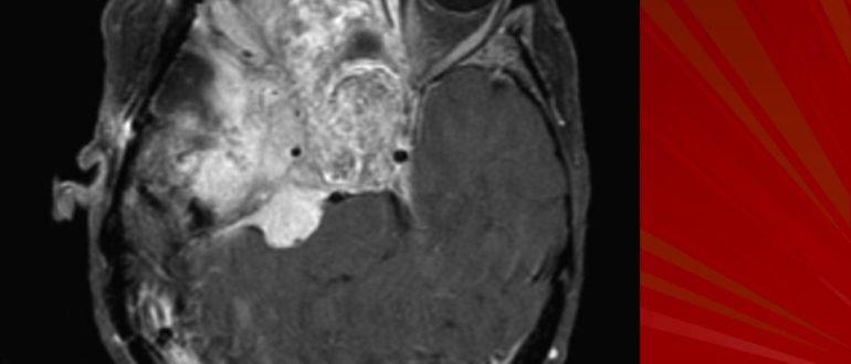 Менингиома основания черепа