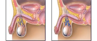 Что делать, когда член и яйца залезает внутрь тела?