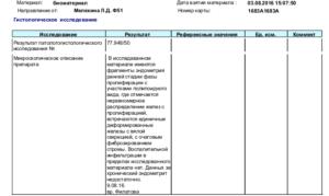 Что означает микроскопическое исследования пальпель биопсии эндометрия