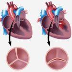ЭКГ. перегрузка левого желудочка