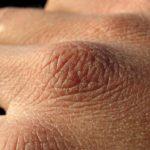 Мышечная атрофия пожилого человека