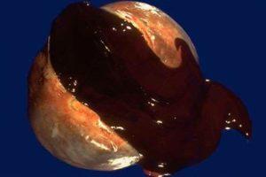 Эндометриоидные кисты