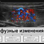 Дисбактериоз кишечника и отсутствие кишечной палочки