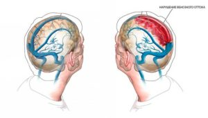 Нарушение венозного оттока, затуманенность сознания, тяжесть в голове