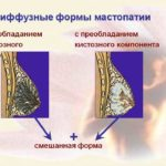 Метронидазол при баквагинозе