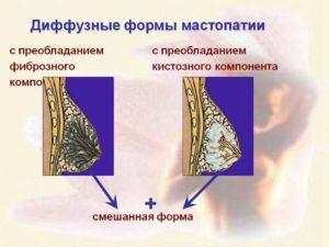 Дифузная фибромо-кистозная мастопатия