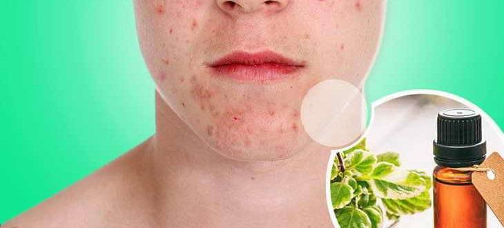 Эффективное лечение проблемной кожи с помощью гомеопатии