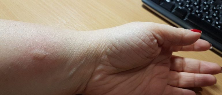 Кошачьи царапины, аллергия или норма?