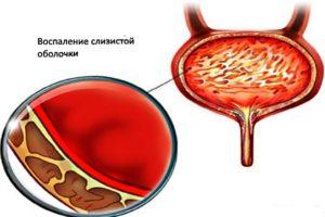 Влияние кишечной палочки на мочевой пузырь