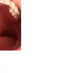 Воспаление яичников, молочница