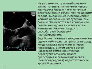 Что значит гиперкинез сердца?