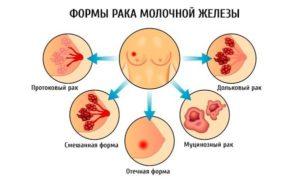Выделения из груди во время беременности