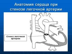 ВПС стеноз легочной артерии