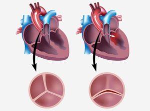 Двустворчатый клапан аорты осложнённый умеренным стенозом клапана