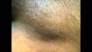 Молочница и воспаление лимфоузла в паху